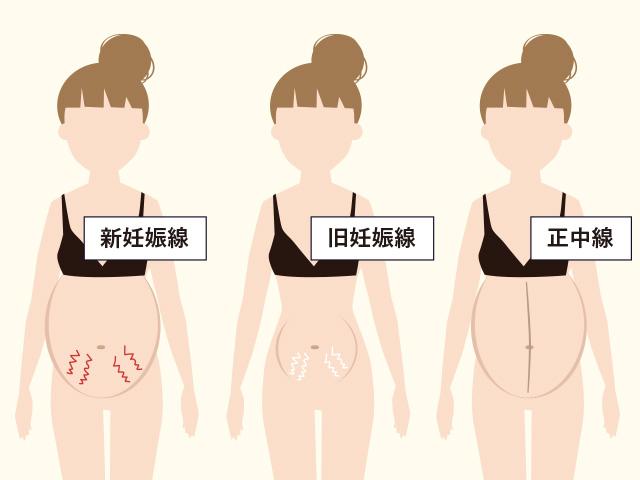 妊娠線の種類