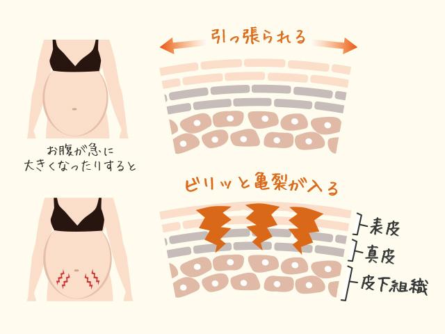 妊娠線ができる仕組み