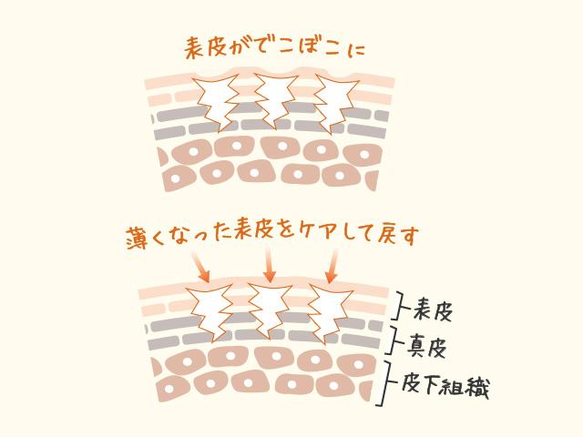 妊娠線の構造