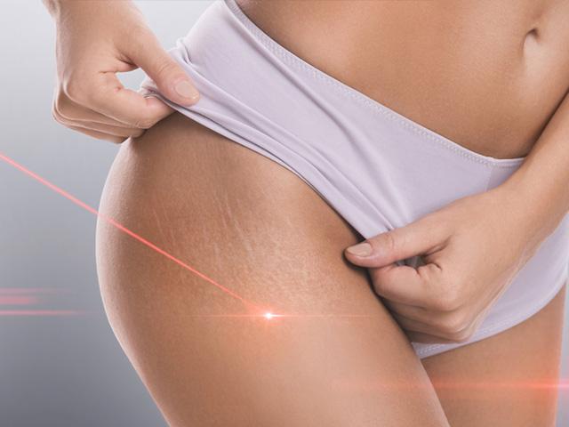 妊娠線 レーザー治療
