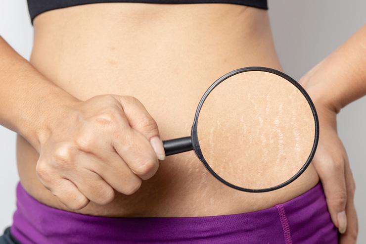 産後の妊娠線を消すおすすめの方法(手術・クリーム)を徹底比較!